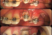 Ортодонт и Я