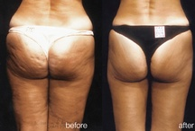 Endermologie Results: Before and After Pictures