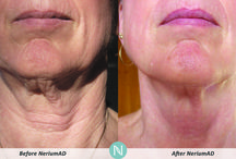 Nerium Products / Results in only 1 week.  Dramatic differences in 30, 60, and 90 days.  If you want to learn more about these products, please contact me or purchase directly from my page: www.haffner.nerium.com  / by Kelsey Haffner