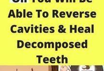 tanden mooier