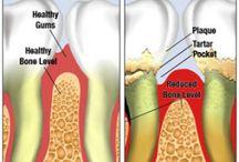 Gentle Dental Portland Maine / Gum Disease – Gingivitis and Periodontitis Fixes at Morgan Dental Care