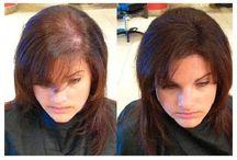 Non Surgical Hair Restoration / Hair Restoration