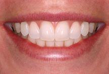 Tänder referenser