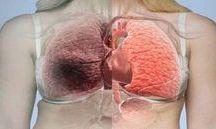 Suco p.limpar os pulmões
