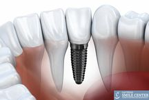 Las Vegas Dental Implants / Dental Implants are one of the best procedures to replace your missing teeth. Get Your Dental Implants at Las Vegas Smile Center CALL 702.433.6825