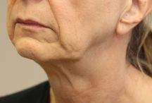 Facelift - Face Rejuvenation / 62 year old female before a Facelift and Facial Fillers for Volume Enhancement