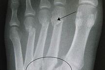 Lisfranc Fractures