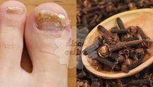 Remédio para fungos das unhas.
