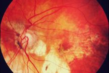 Patient information: Age related macular degeneration