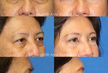 Eye Rejuvenation Before & After / Carmel Valley Plastic Surgery - Eye Rejuvenation. 11943 El Camino Real #100  San Diego, CA 92130 Phone: (858) 259-3223