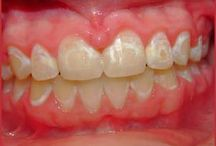 Dental Tips / Follow these dental tips for a perfect smile and keep your #teeth safe and healthy