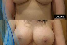 augmentation mammaire avant apres