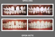 Before and After Photos / A collection of before and after photos of orthodontic patients.