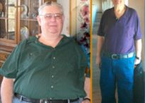 James Yeamans / Austin Medicare Patient Adds Years to His Life as a Result of Gastric Bypass Surgery