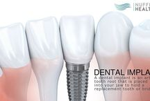Dental Implants in Singapore