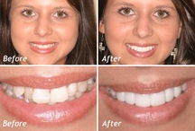 Cosmetic Dentistry / Cosmetic dentistry is a field that restores form, function, and beauty to your teeth. Dr. Rykard blends art and science to not only clean and restore your teeth, but to make them beautiful as well.