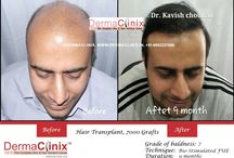 Hair Transplant Before and After Results India