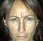 Brow, Glabellar Wrinkle And Line Removal With Yoga Facial Exercises