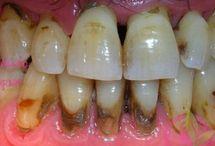 Diş tartarı