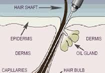 Electrolysis / Permanent hair removal targeting all hair colours.