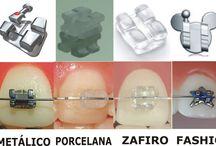 Ortodoncia / Clases de ortodoncia. Brackets y materiales que se utilizan en la ortodoncia en las Clínicas dentales IDIM en Valencia