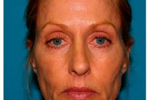 Facelift / Before and After Patient Photos