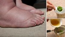 pés inchados