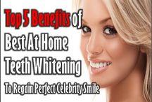 Celebrity Smile Teeth Whitening