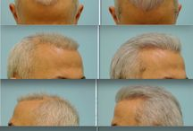 Hair Transplant Corrective Before and After Results
