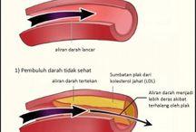 Obat Herbal Sembuhkan Penyakit Kolesterol