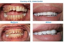 Hollywood smile with dental implants / Hollywood smile in Lebanon can also be achieved with the combination of cosmetic dentistry #lumineers #veneers and #dentalimplants call us now: +96170567444 (WhatsApp...)