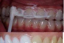 Dentes limpos