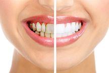 AĞIZ & DİŞ SAĞLIĞI / Ağız ve Diş Sağlığı Hakkında Herşey, Ağız için Enfeksiyonlar Ağız Diş Hastalıkları, Diş çürükleri, Protez nedir nasıl takılır ? Ağız kokusu tedavisi, Ağız ve dudak kanseri belirtileri, Diş bakımı, 20 yaş diş sorunu, Apse çürük, diş kanal tedavileri, Diş Çekim Yerinin İltihaplanması (Alveolit),Ağız yaraları diş eti hastalıkları, Çene kemiği iltihabı, Diş beyazlatma teknikleri hakkında profesyonel makaleler...