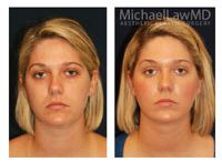 Chin Liposuction at Michael Law MD Aesthetic Plastic Surgery