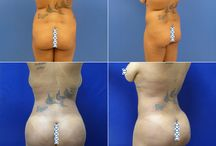Brazilian Butt Lift / Before and After images of Brazilian Butt Lift plastic surgery patients