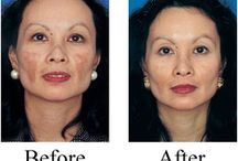 Melasma Treatment / Melseton for Melasma Treatment