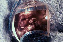 Schwangerschaft Überraschung