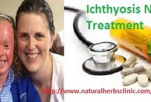Ichthyosis Natural Treatment