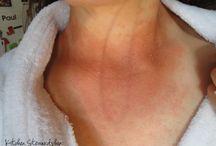 seb dermatitis