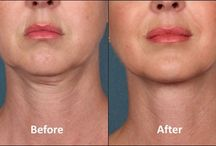 Botox/Dysport Goodbye Wrinkles! / Beauty