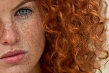 Ginger with freckles