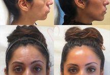 30-min Non-surgical Face Lift