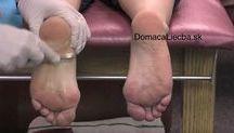 bolesti noh