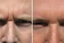 Minimize Glabellar Brows Furrows With Face Training Exercises