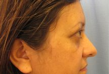 Browlift / Before and After Photos of Patients from Masri Clinic