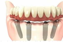 All on 4 dental price in Budapest, Hungary / If you wear a denture and you are unsatisfied with it, your chewing ability can be restored by the placement of all on 4 solutions. Neither bone grafting nor sinus lift list is needed so the total costs of all on 4 for one arch is as low as 4,467GBP/5922EUR. This price includes four dental implants and abutments, a 3D scan, surgical fees, medications and a temporary denture and a final all on 4 denture. So no surprise costs.