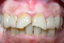 Restauraciones estéticas  en dientes fracturados