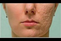 Remedio Casero Para Las Cicatrices Y Arrugas