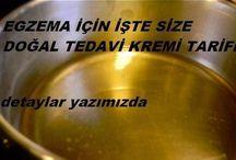 Ekzama