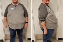 Male perspective to Gastric Bypass Surgery